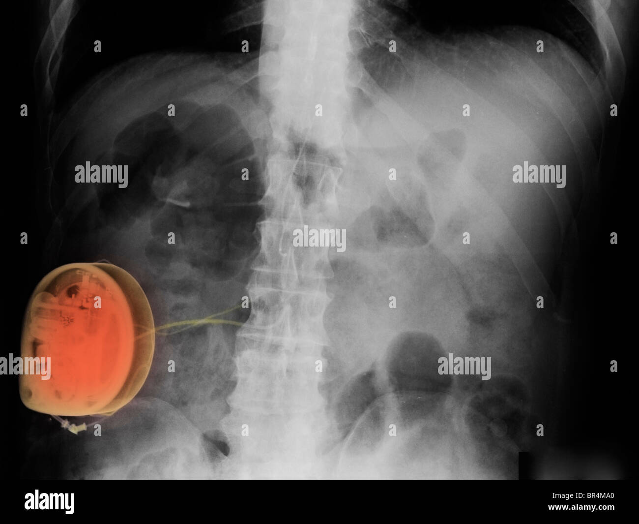 x-ray showing a spinal cord stimulator used to treat pain - Stock Image