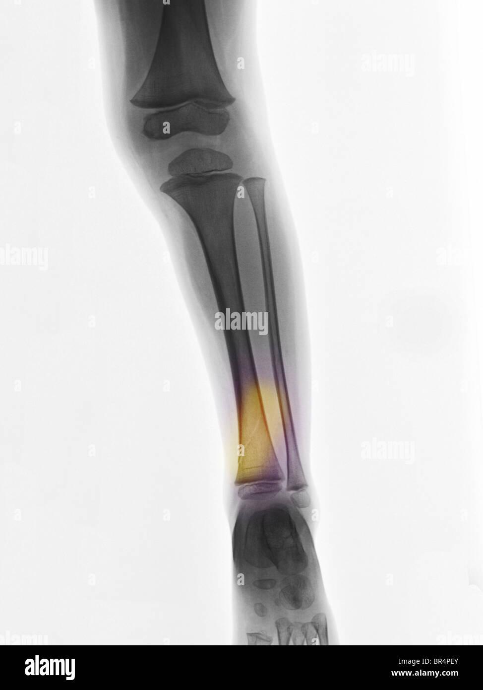 Leg Break Fracture Bone Break Stock Photos Leg Break Fracture Bone