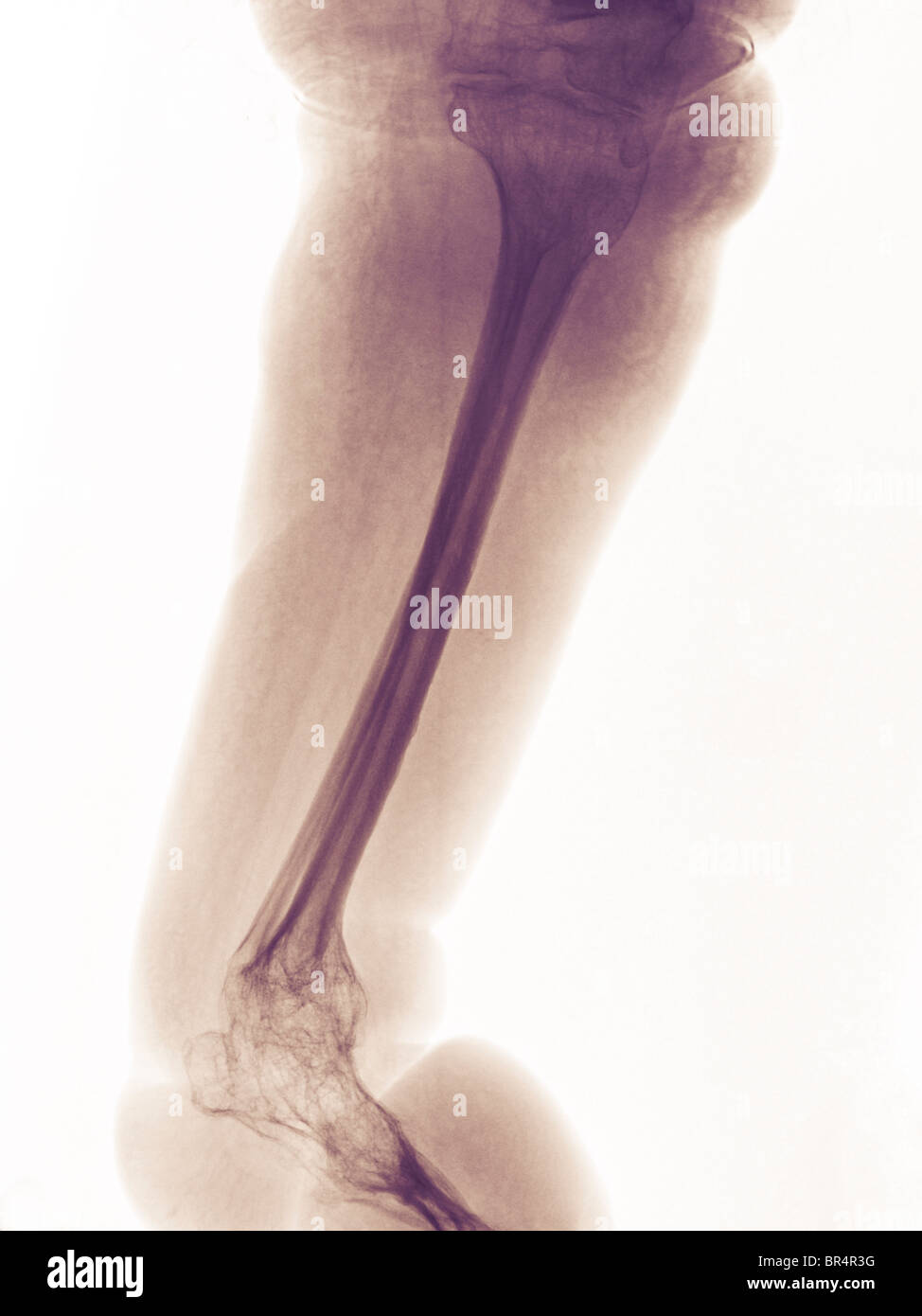leg and foot x-ray of a 63 year old man with paraplegia and extensive degenerative changes and osteopenia - Stock Image