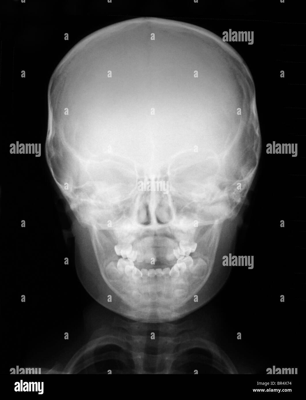Skull x ray anatomy