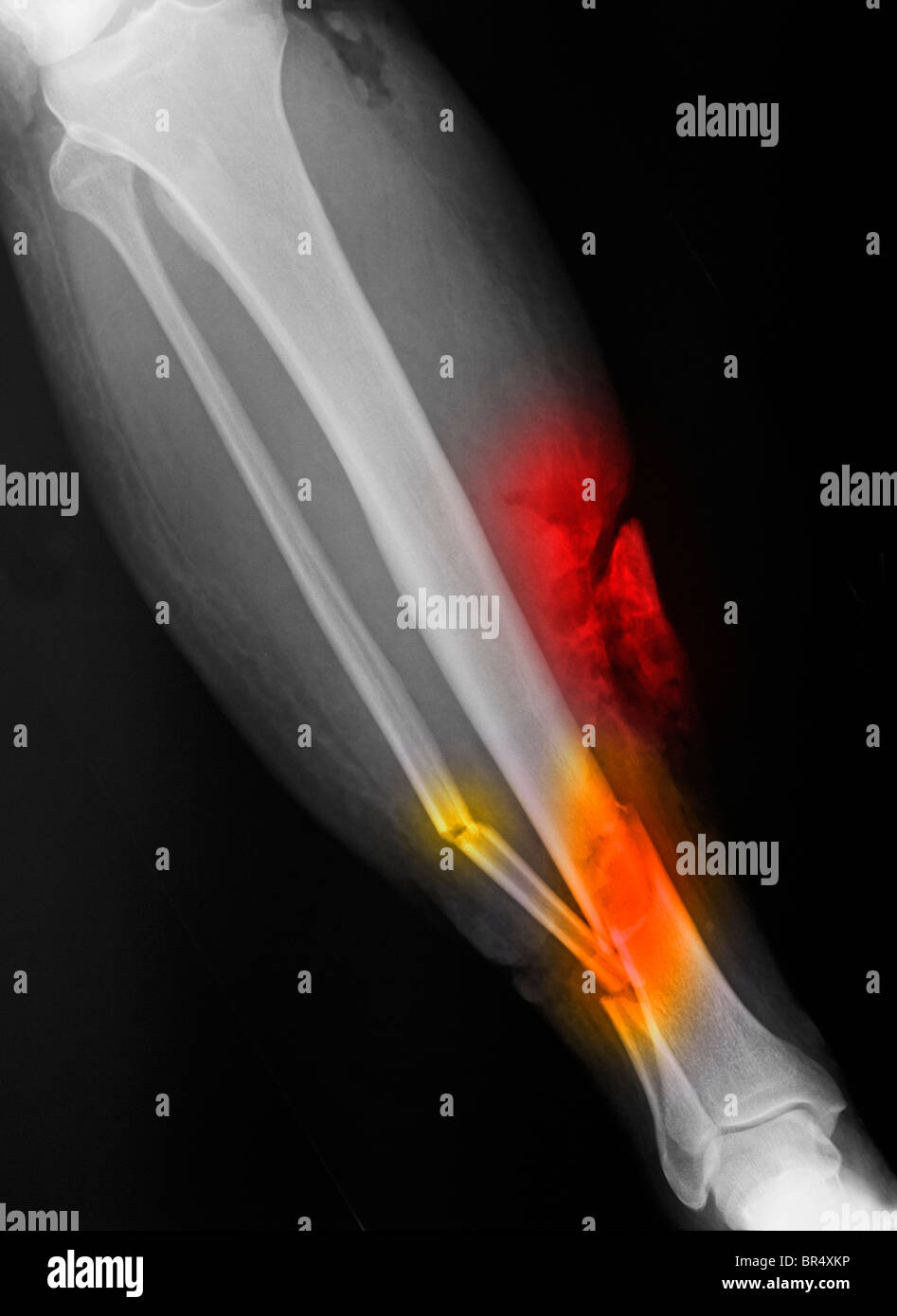 x-ray showing an open tibia and fibula fracture of the lower leg of a 65 year old man involved in a motorcycle accident - Stock Image