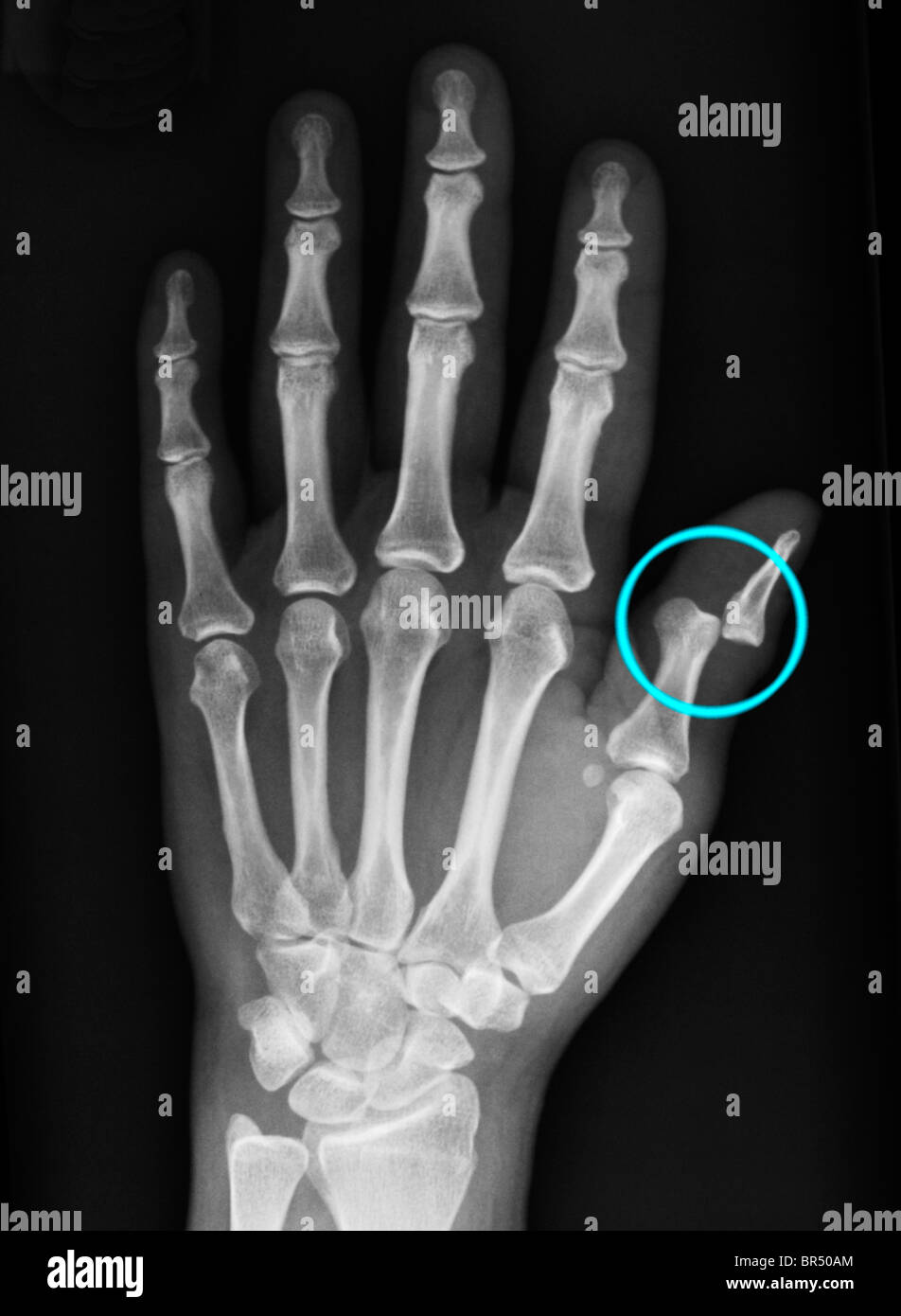 hand x-ray of a 36 year old woman showing a dislocation of the distal phalanx of the thumb Stock Photo