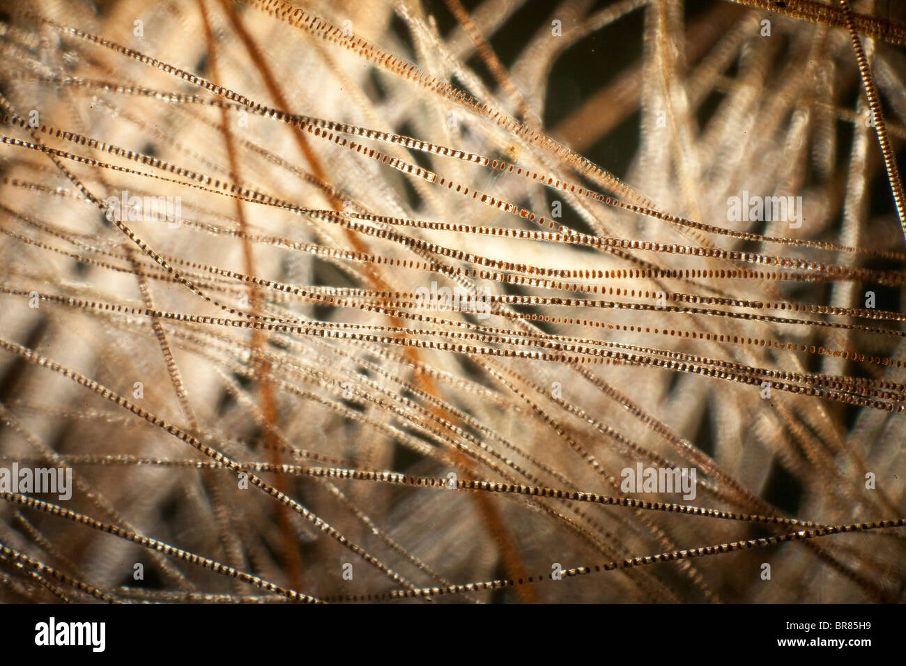 Darkfield photomicrograph, hair of house mouse (Mus musculus) Stock Photo