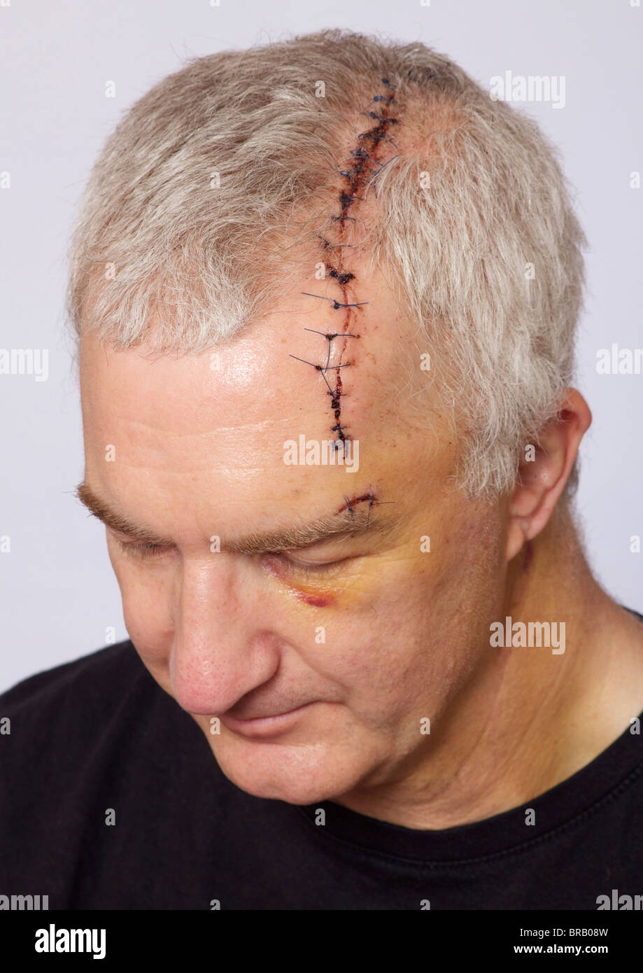 man with long head wound and stitches stock photo 31589177 alamy
