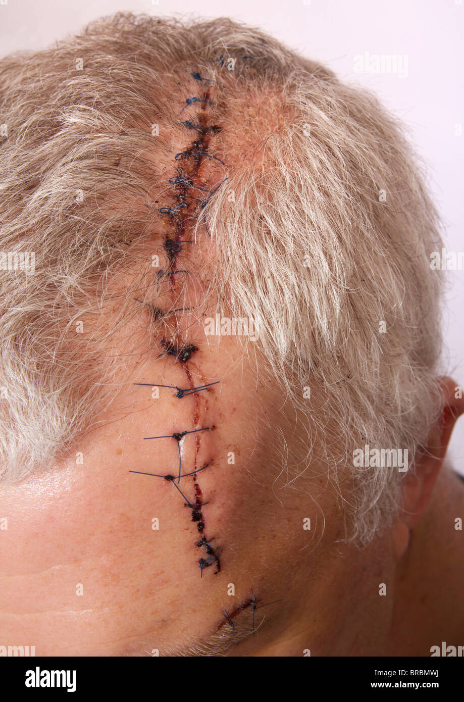 man with long head wound and stitches stock photo 31605326 alamy