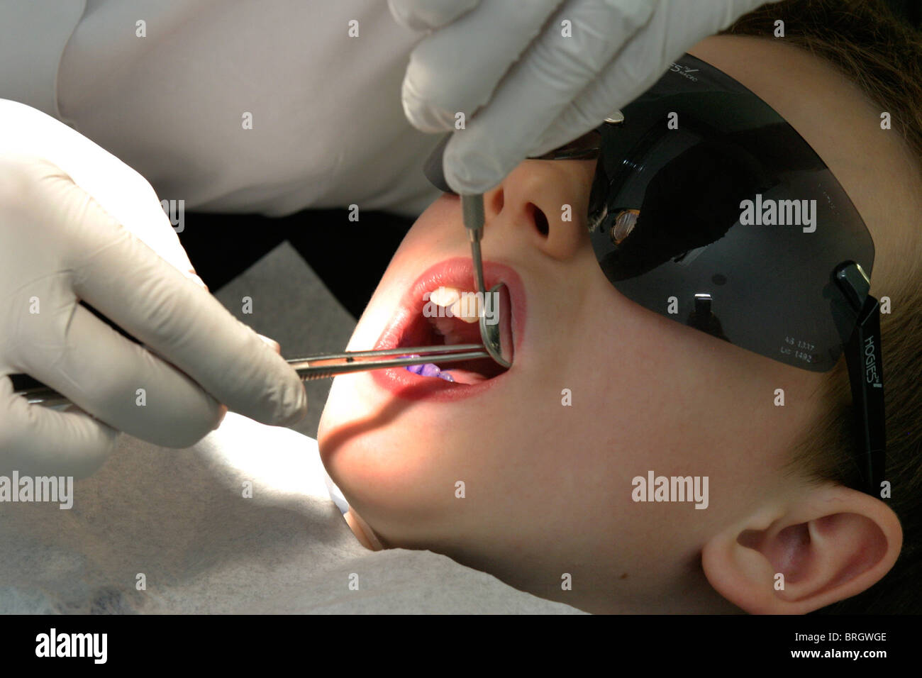 Young child having teeth inspected and worked on by dentist - Stock Image