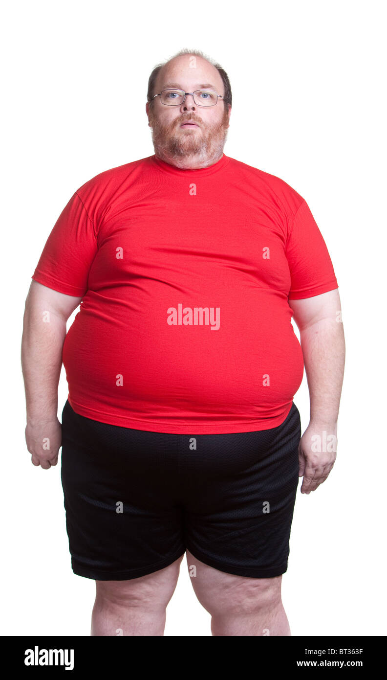 Obese man at 400lbs - front - Stock Image