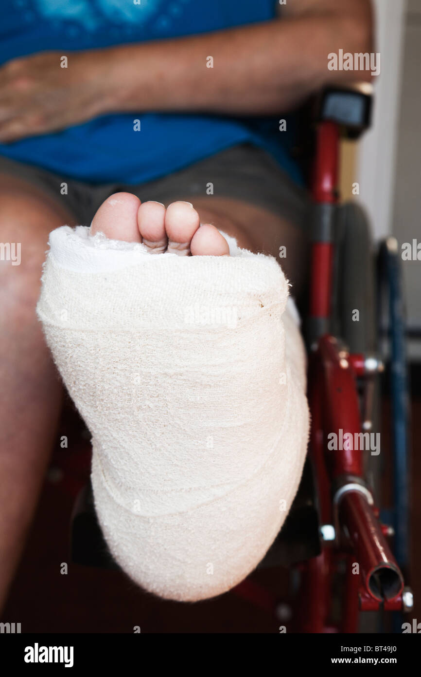 Broken Ankle Stock Photos Broken Ankle Stock Images Alamy