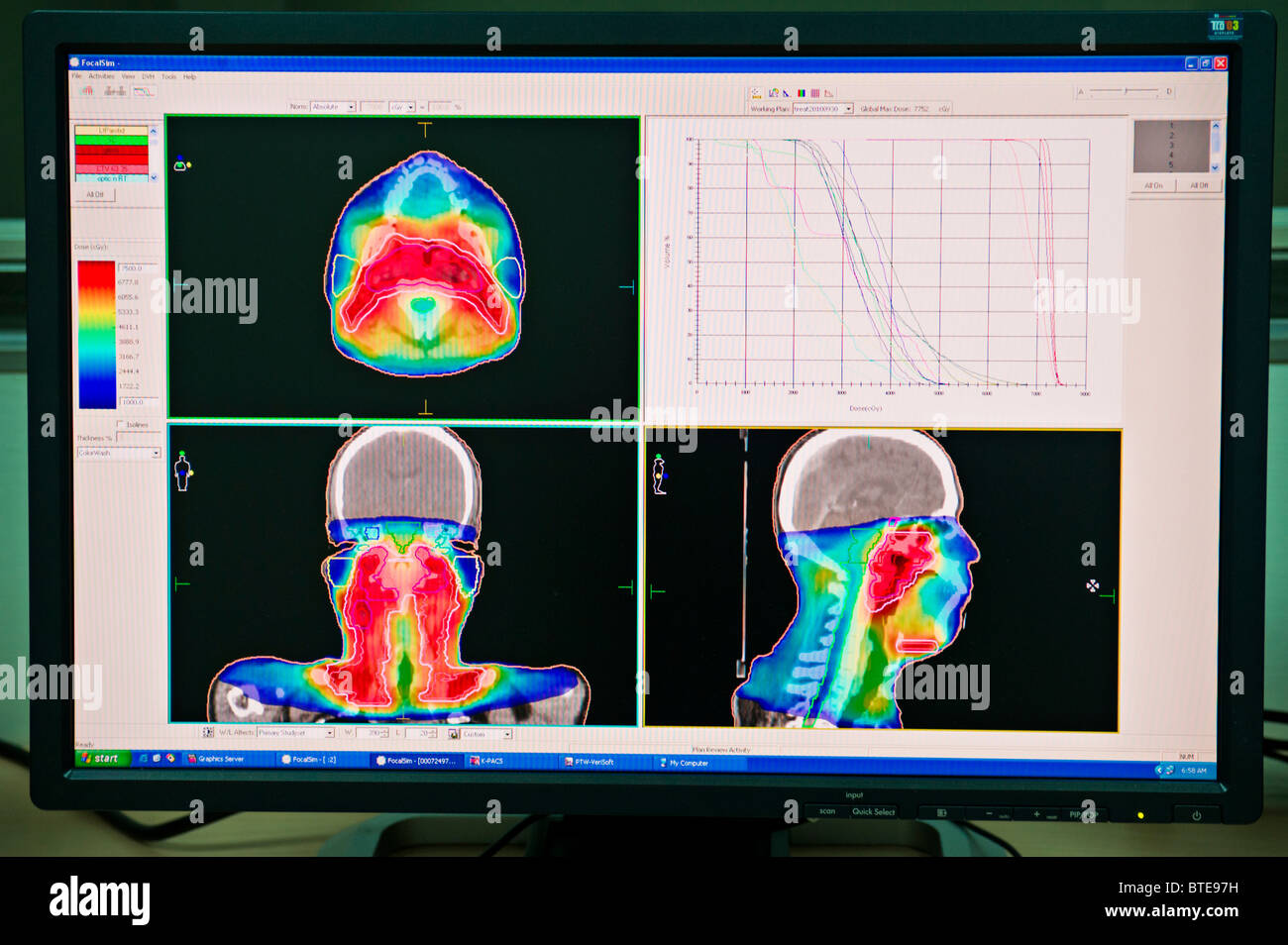 Computer monitor in hospital oncology department showing CT images - Stock Image