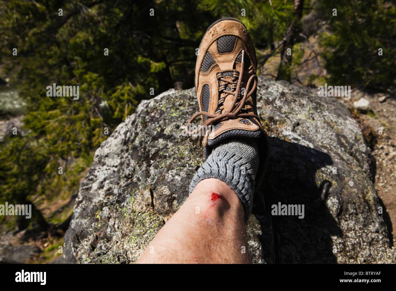 A mans leg with a bleeding contusion on his shin. - Stock Image