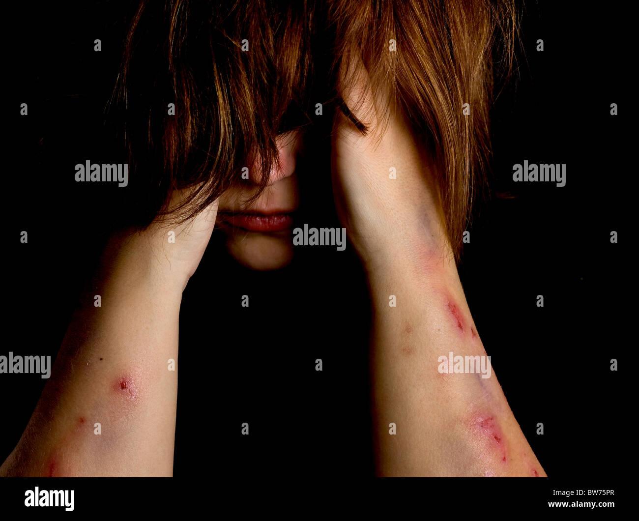 Violence victim - Stock Image