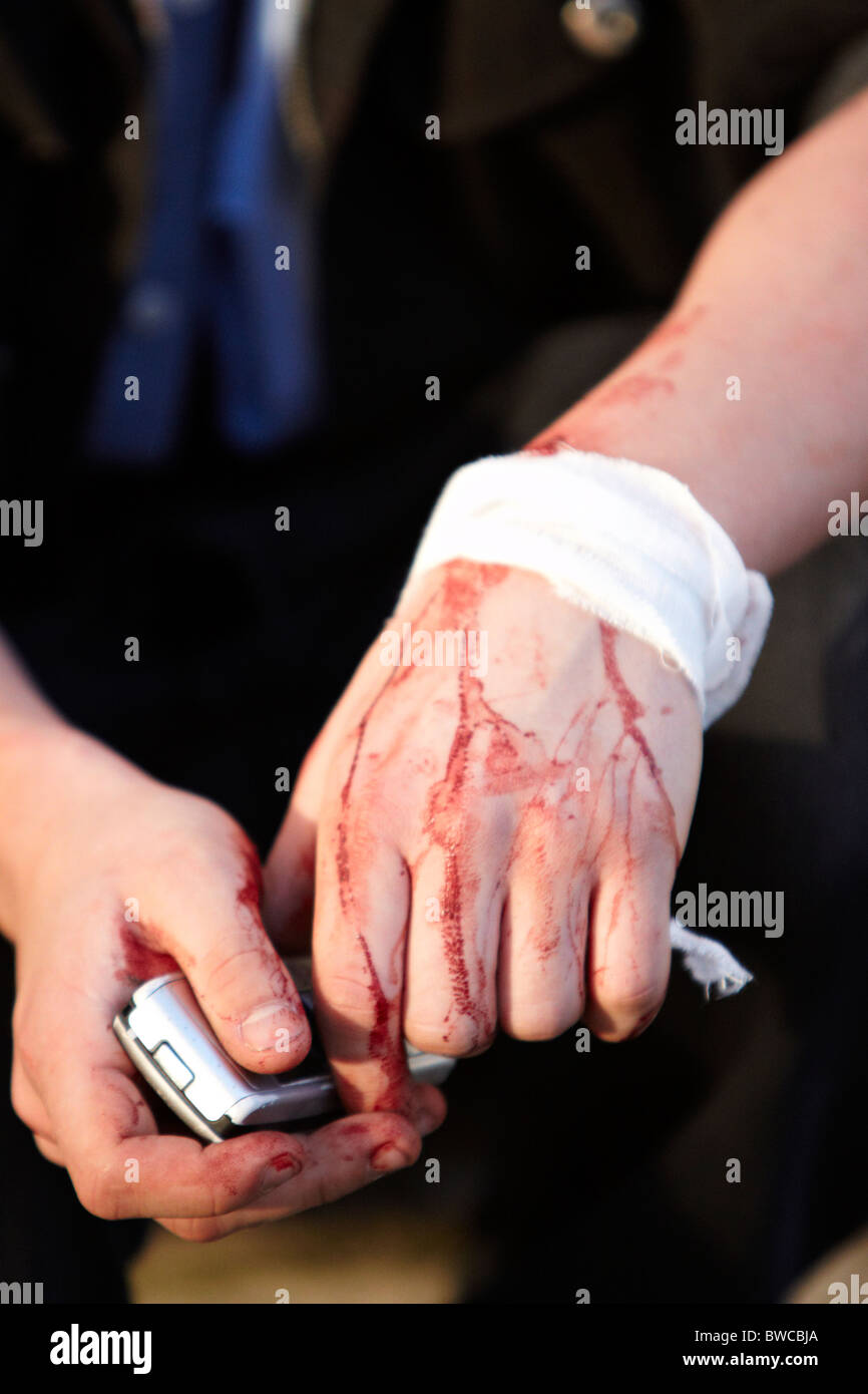 Injured protester during student protests against tuition fees - Stock Image