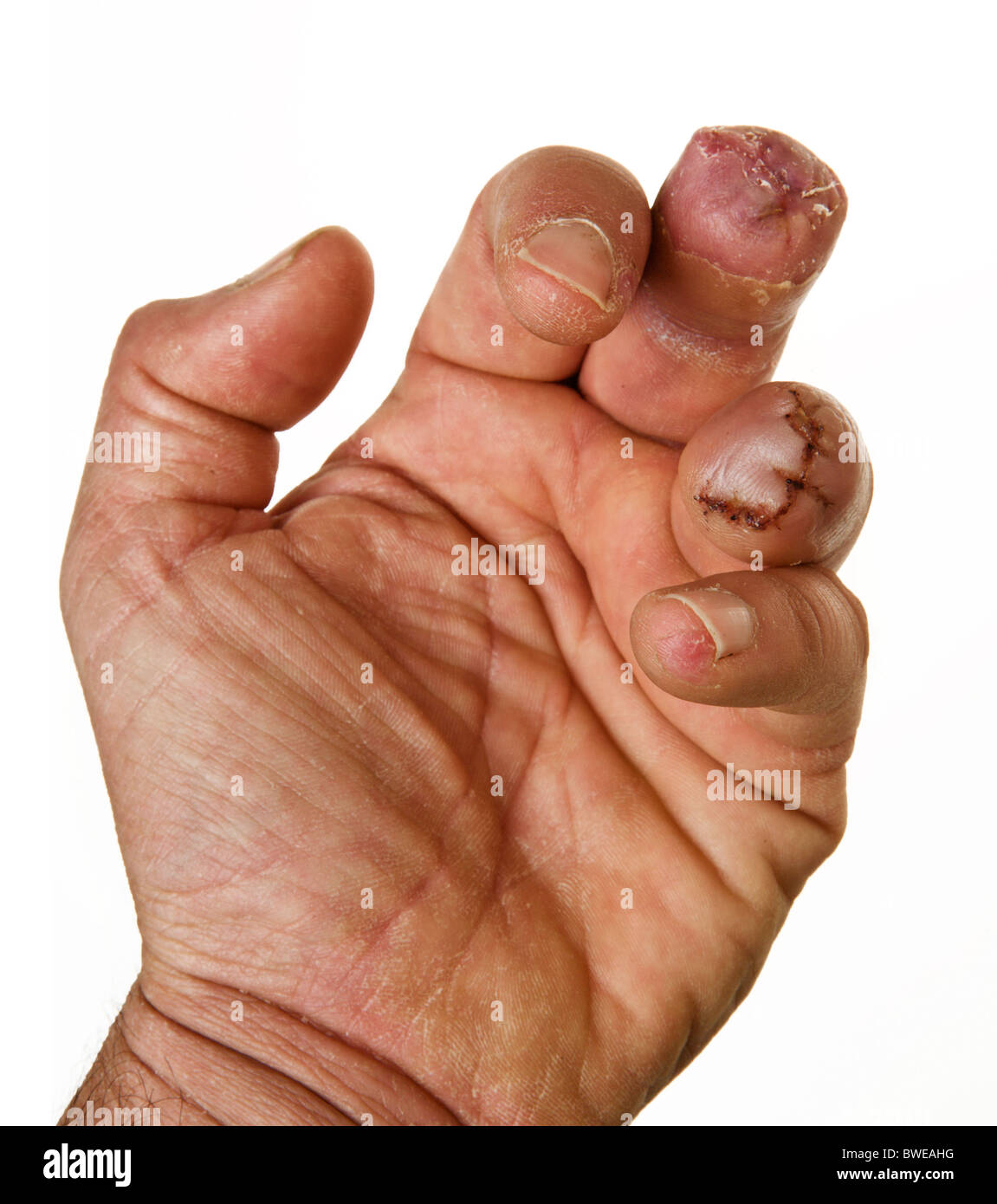 male close up of left hand on white background missing two fingers - Stock Image
