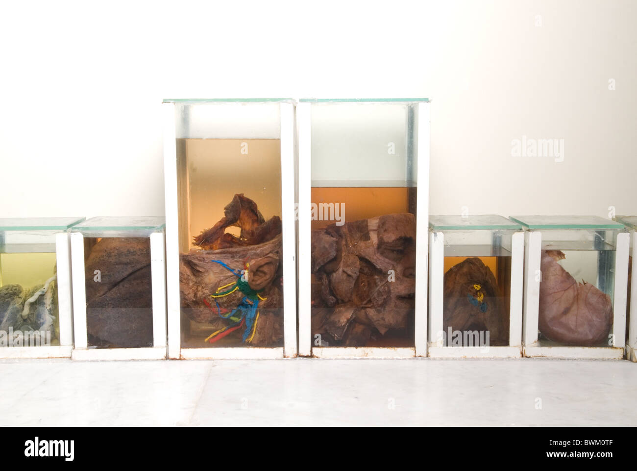 Human organs embalmed in glass containers inside the faculty of medicine of Beirut Arab University Lebanon Middle - Stock Image