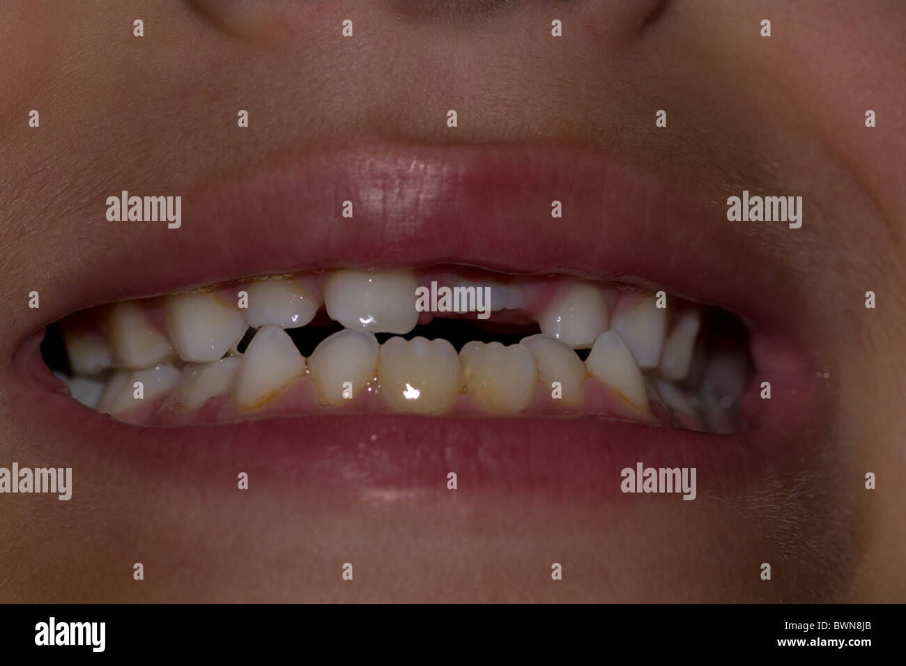 dirty dentist stock photos dirty dentist stock images alamy. Black Bedroom Furniture Sets. Home Design Ideas