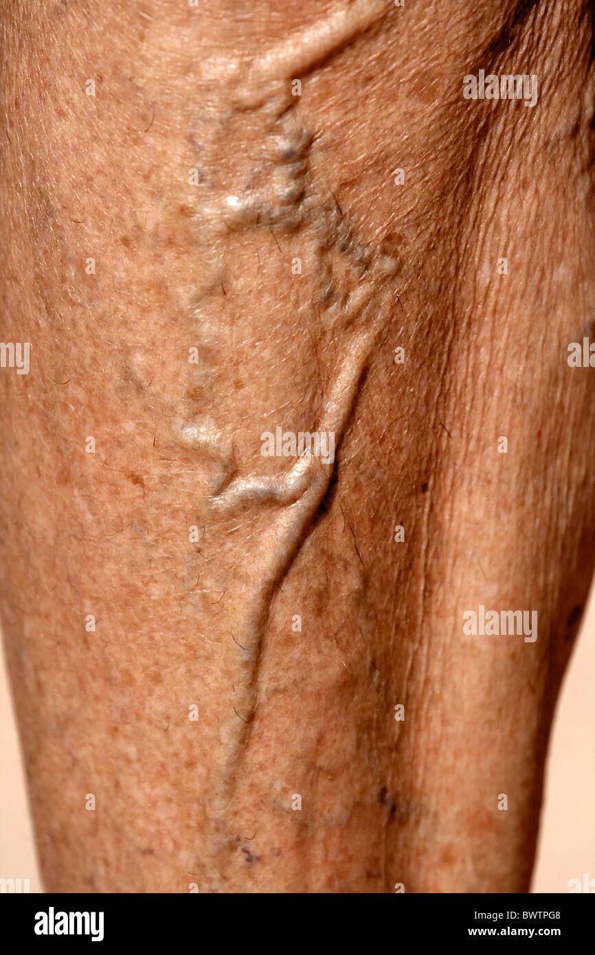body anatomy illness varicose veins legs leg detail skin sickness ...