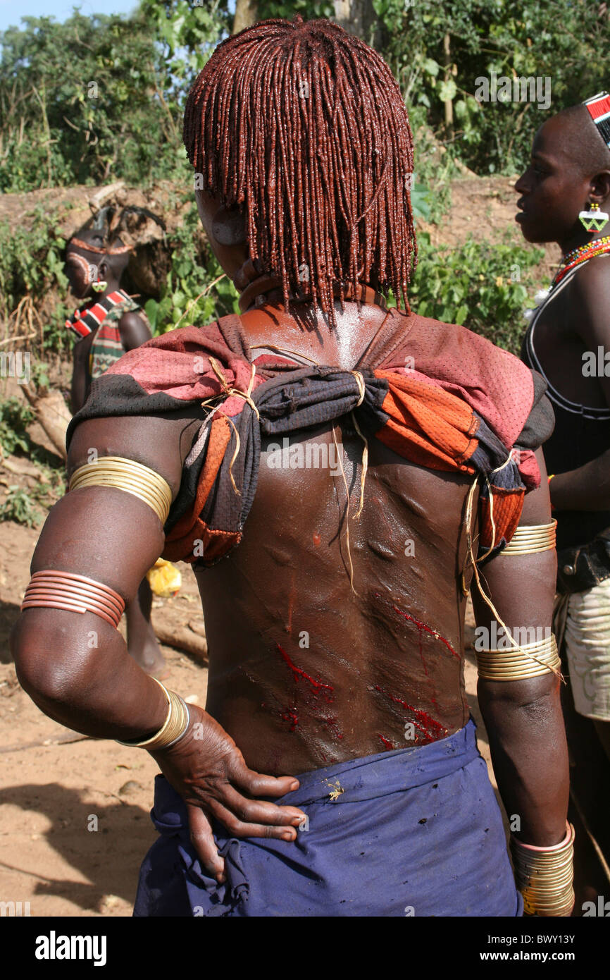Sister of The Initiate With Whip Scars On Her Back At A Hamer Bull-jumping Ceremony, Omo Valley, Ethiopia Stock Photo