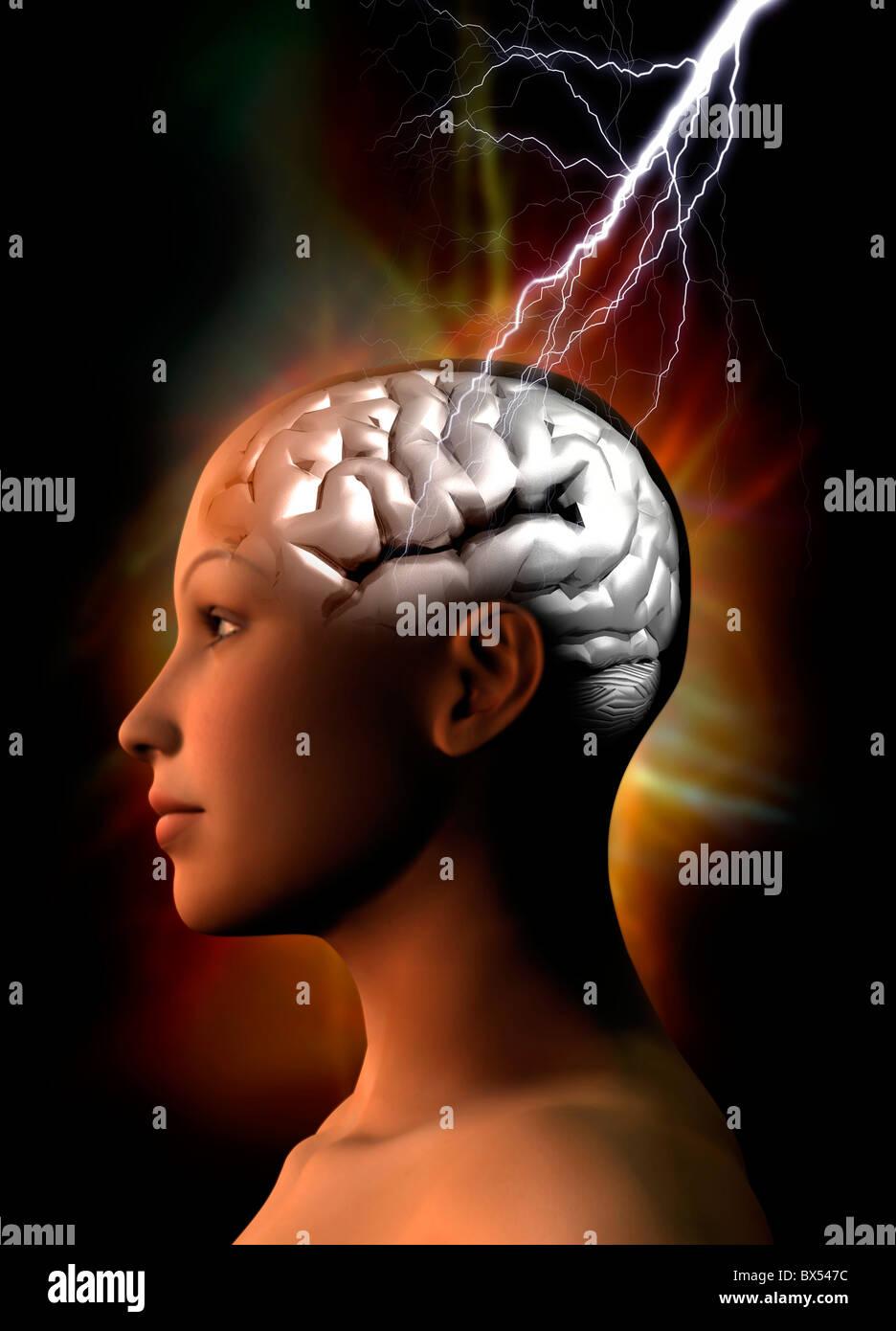 Migraine, conceptual artwork - Stock Image