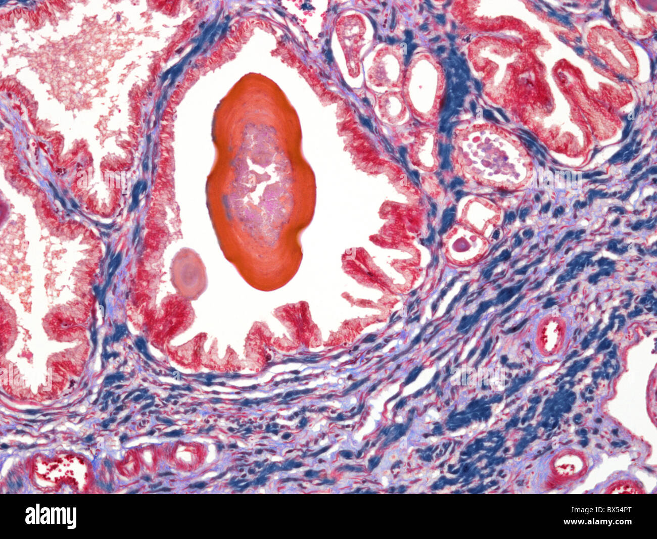 Prostate, light micrograph - Stock Image