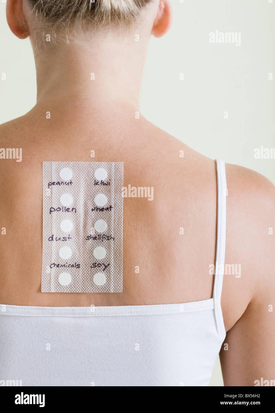 Allergy test - Stock Image