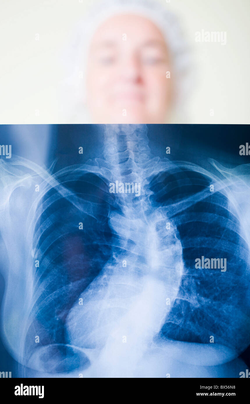 Scoliosis diagnosis - Stock Image