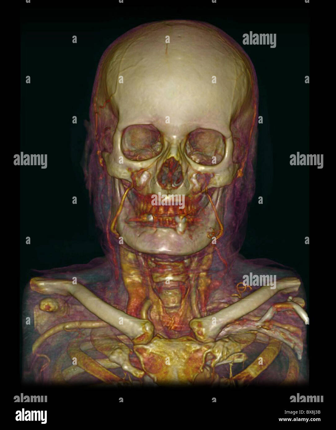 3d Ct Scan Head Stock Photos & 3d Ct Scan Head Stock Images - Alamy