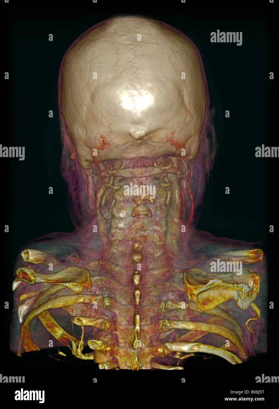 3D CT scan of the head of an elderly man Stock Photo: 33381316 - Alamy