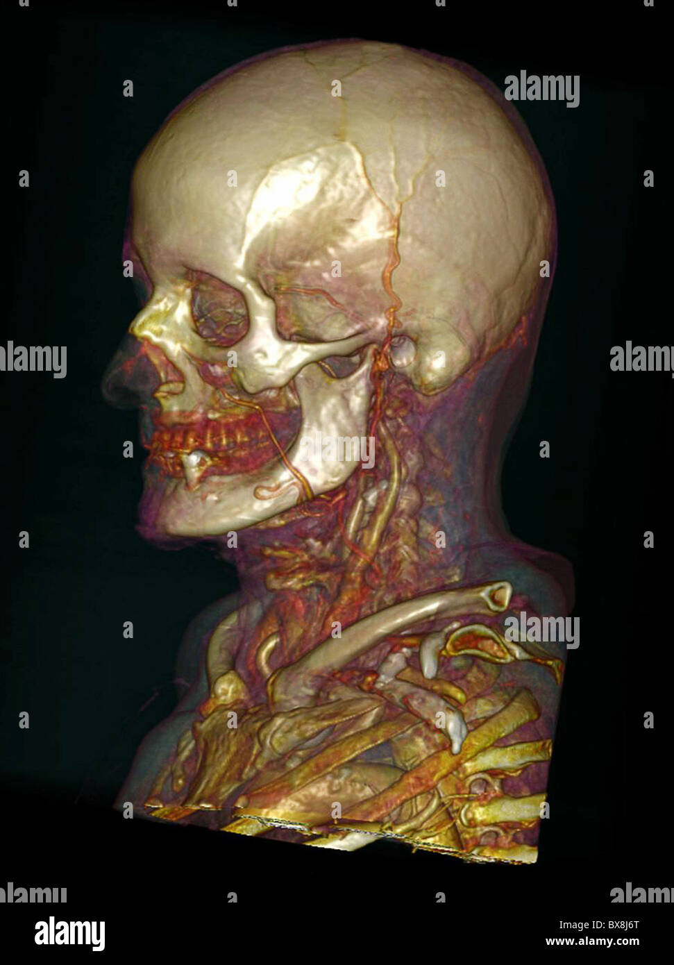 Ct Scan 3d Head Stock Photos & Ct Scan 3d Head Stock Images - Alamy