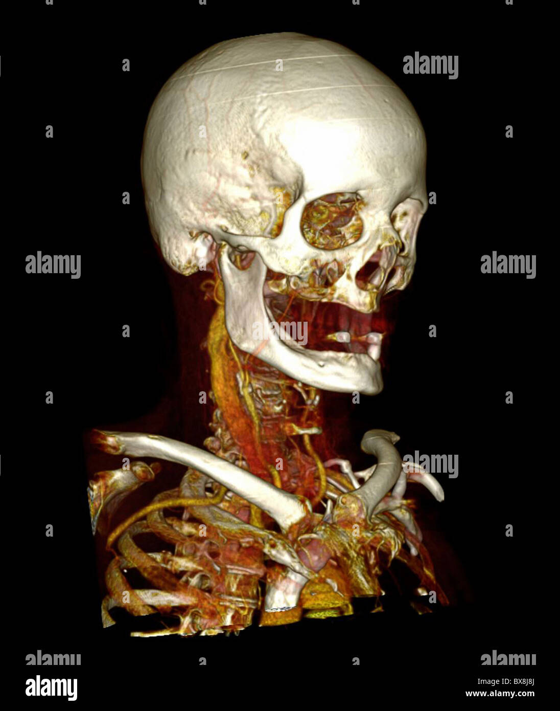 3D CT scan of the head of an elderly man Stock Photo: 33381394 - Alamy