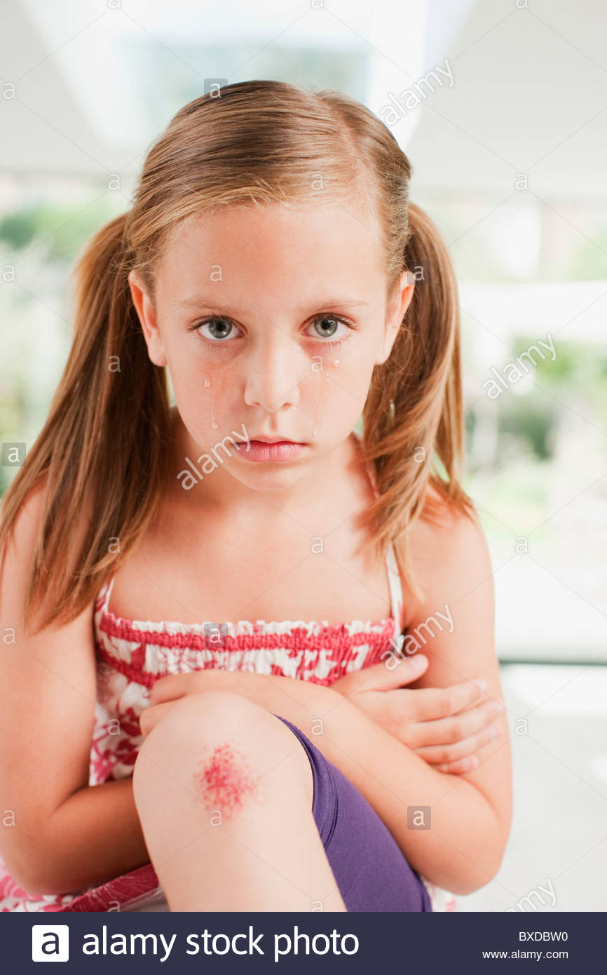 Crying girl with scraped knee - Stock Image