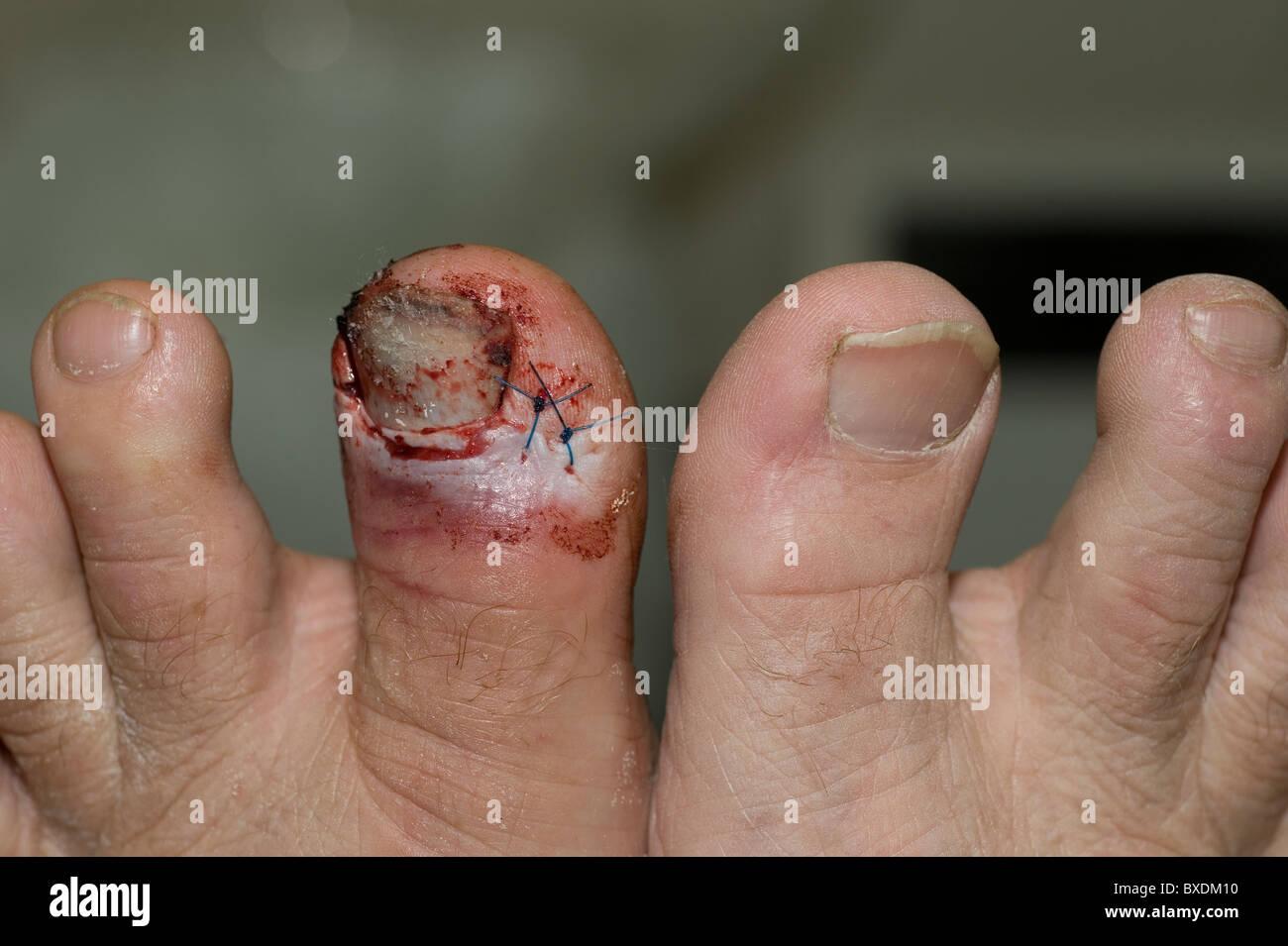 injured toe - Stock Image