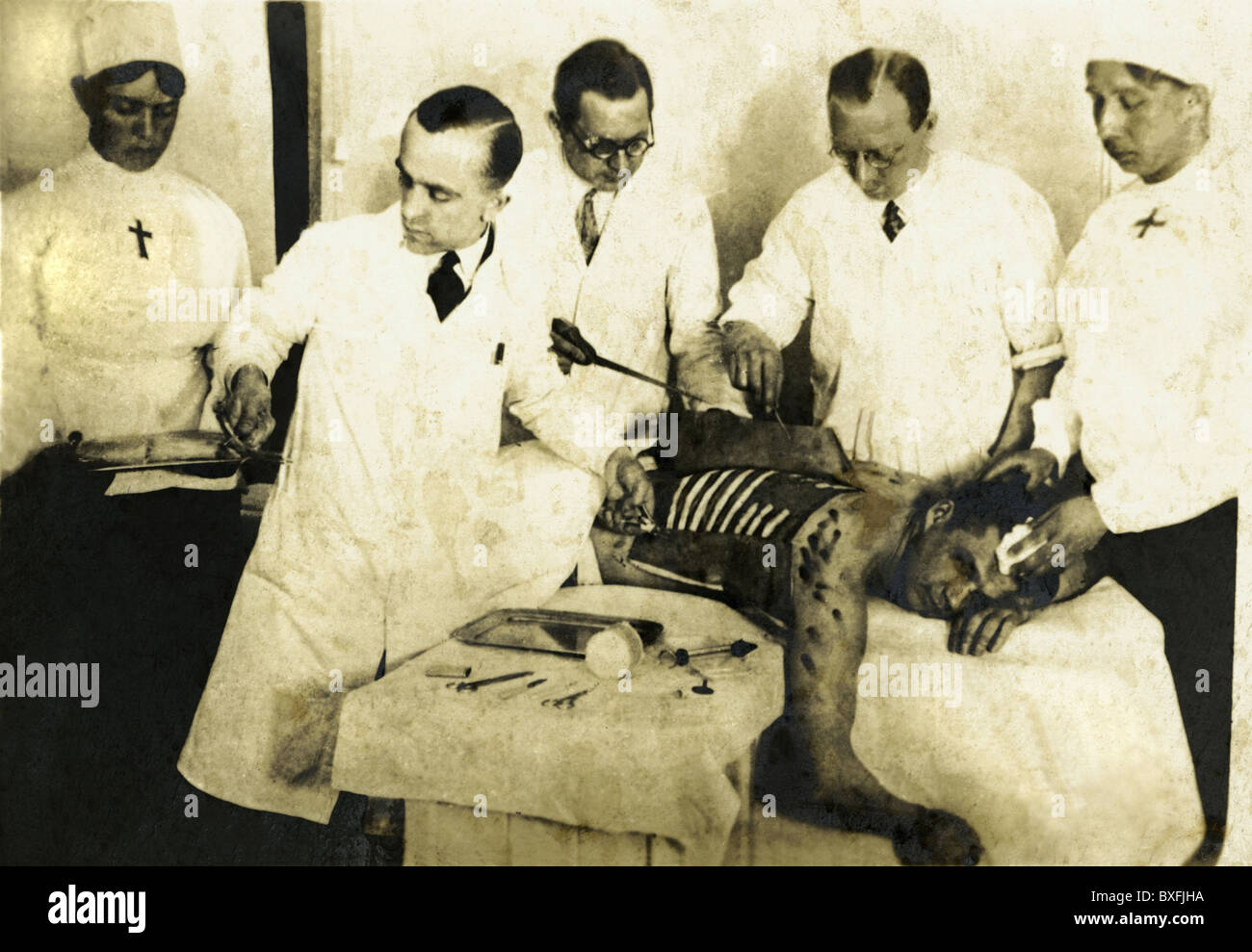medicine, surgery, surgeon open a thorax, patient on operating table, Germany, circa 1918, Additional-Rights-Clearences - Stock Image