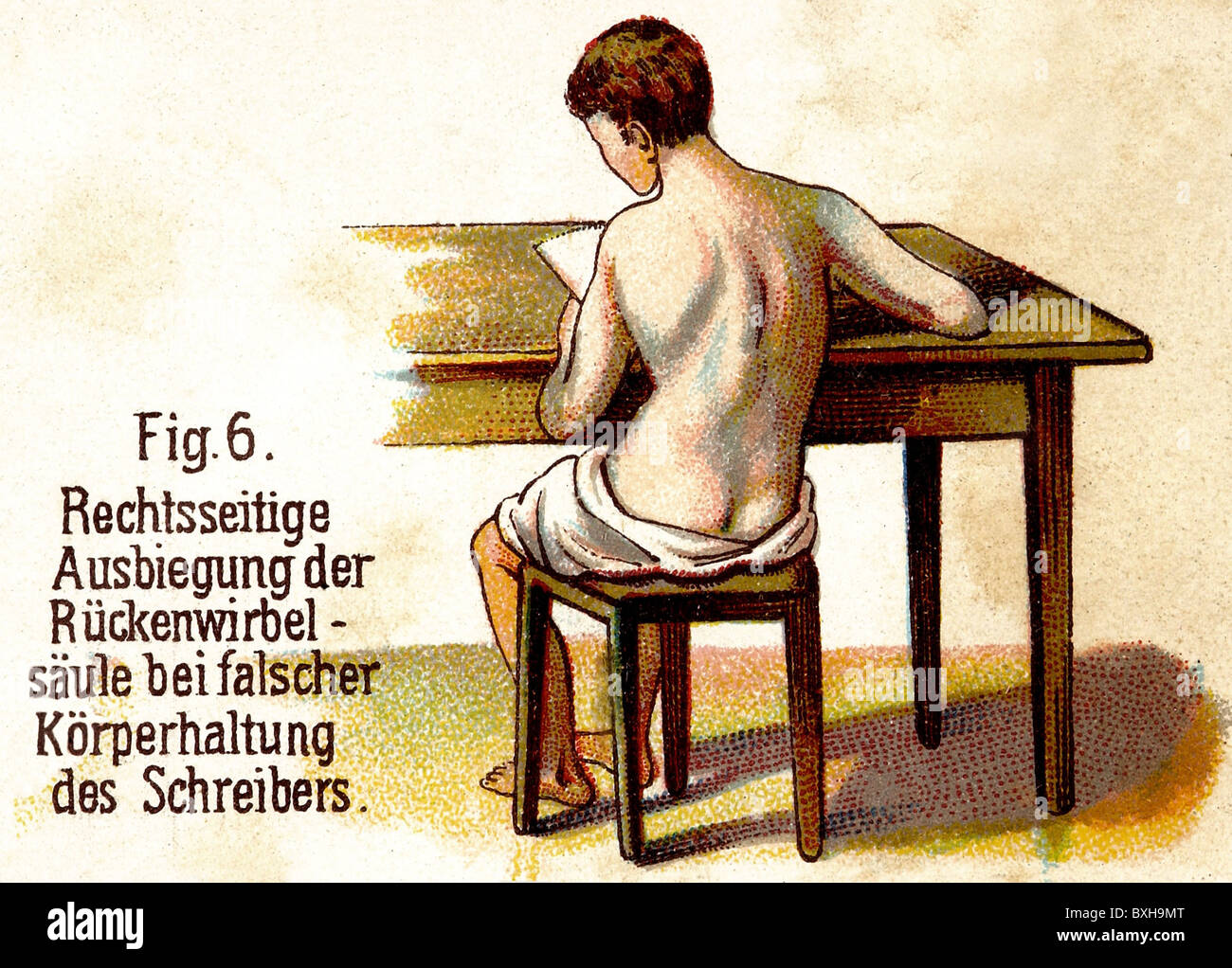 medicine, warped spine as a result of wrong posture while writing, illustration, lithograph, Germany, circa 1900, - Stock Image