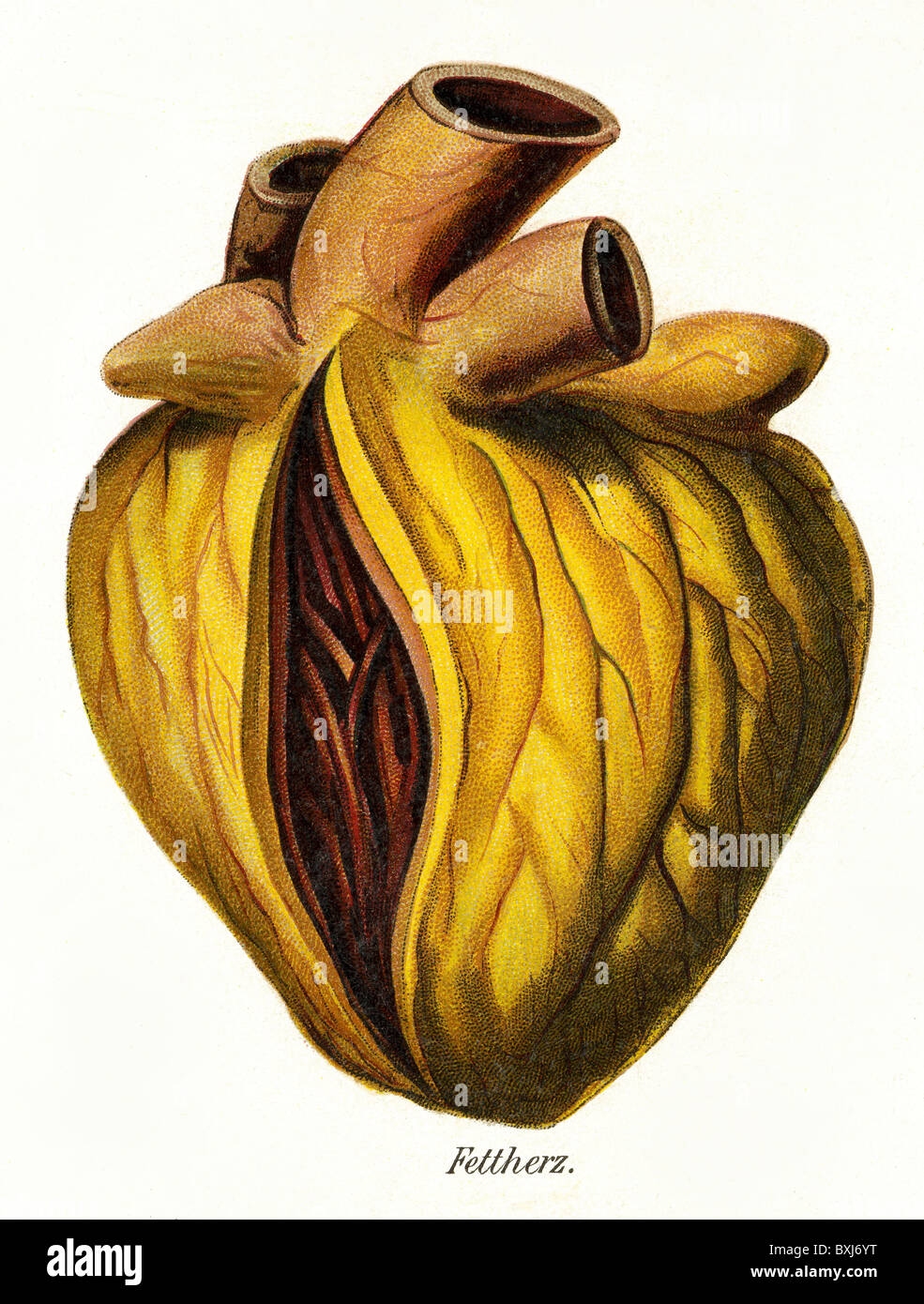 medicine, diseases, heart disease, fatty heart, lithograph, Germany, circa 1900, Additional-Rights-Clearences-NA - Stock Image