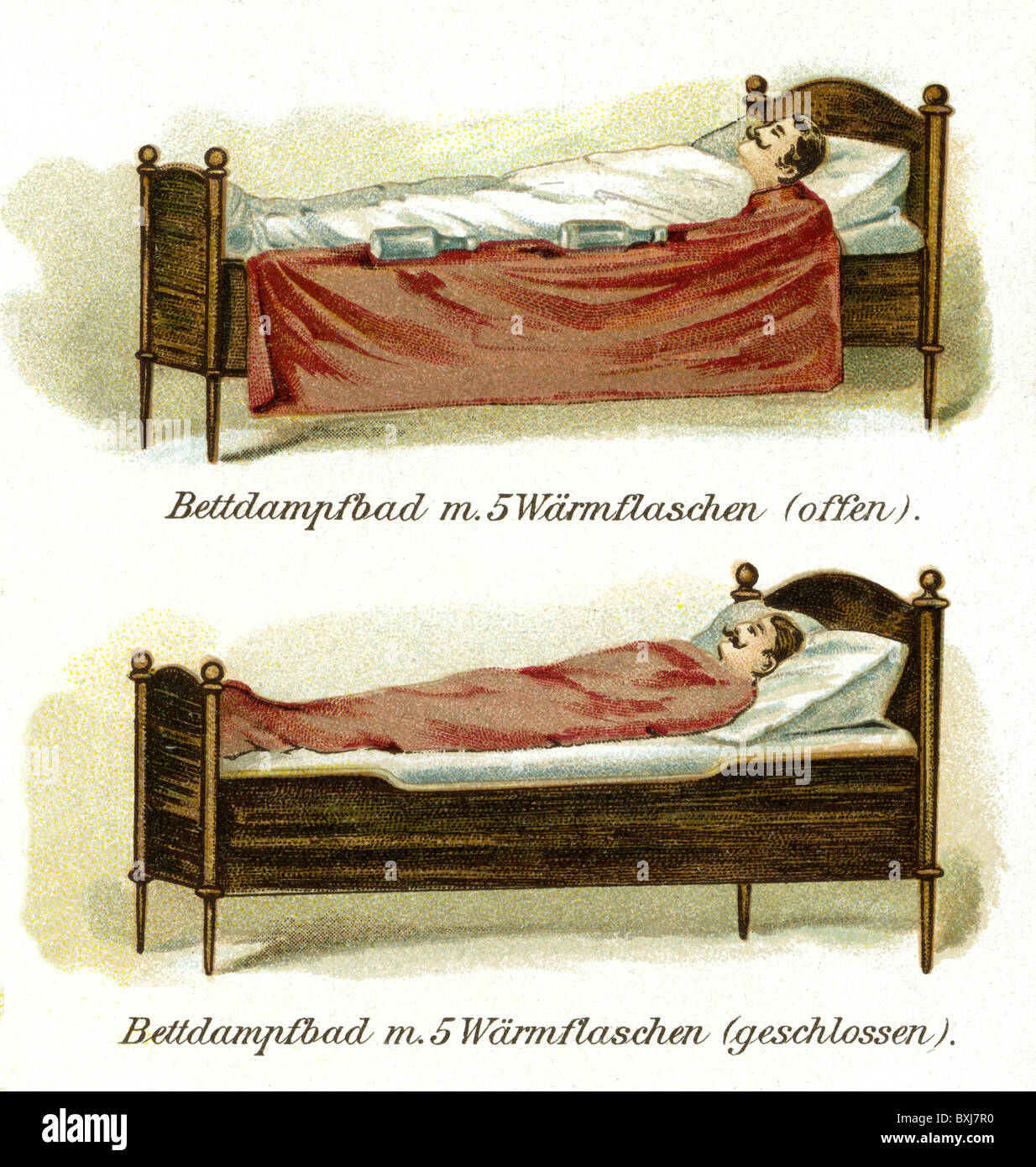 medicine, treatments, steam bath bed, patient lying in bed, Germany, circa  1900, Additional-Rights-Clearences-NA