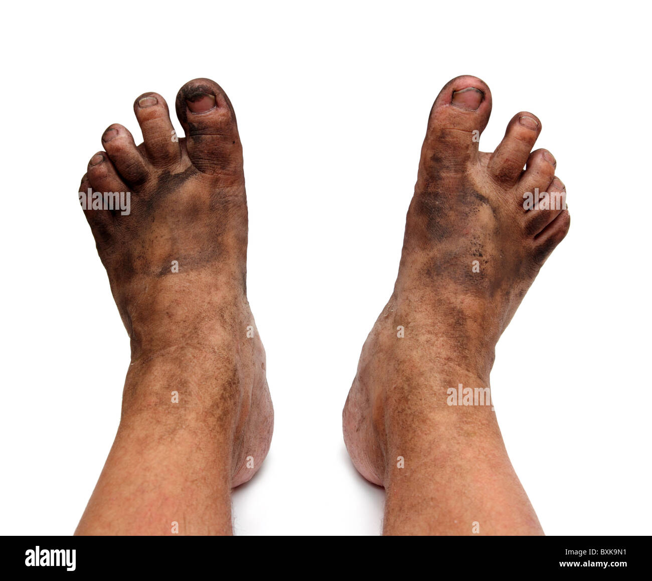 dirty unhygienic foots isolated on white - Stock Image