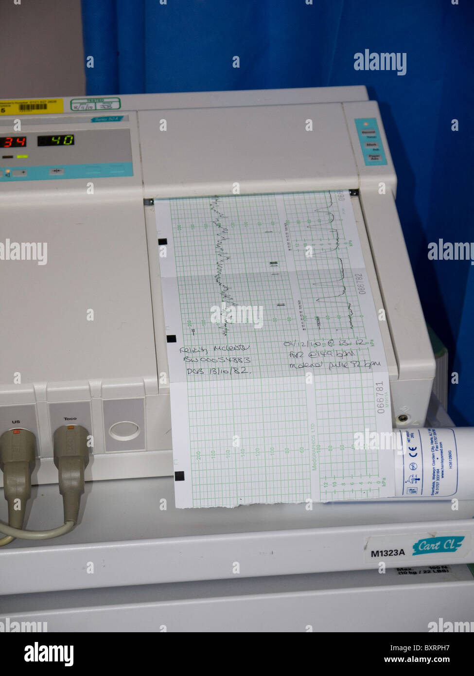 The fetal heart monitor calculates and records the fetal heart rate on a continuous strip of paper. - Stock Image