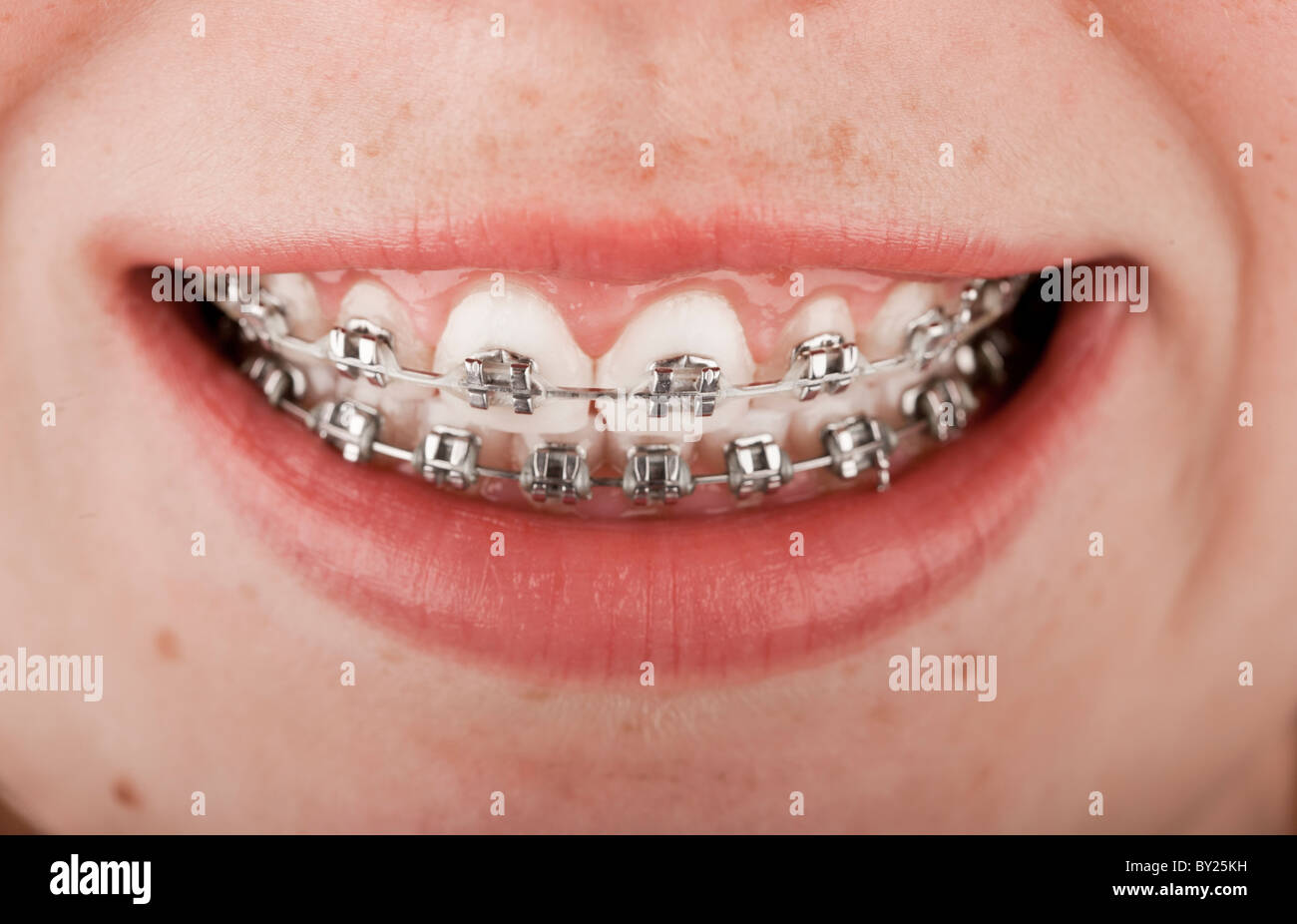 Close-up of a happy teenage girl smiling with braces - Stock Image