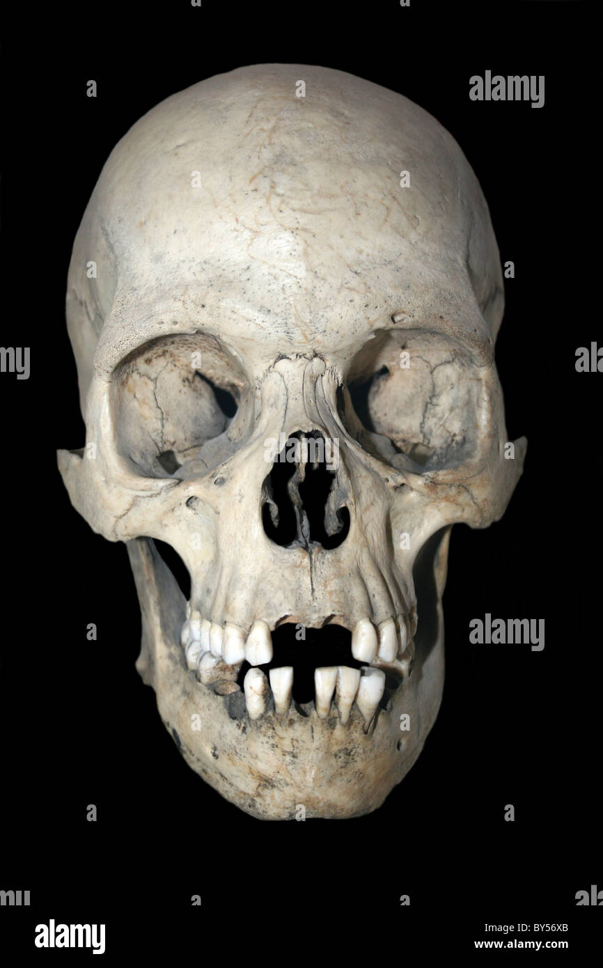 Human Skull Specimens Stock Photos Human Skull Specimens Stock