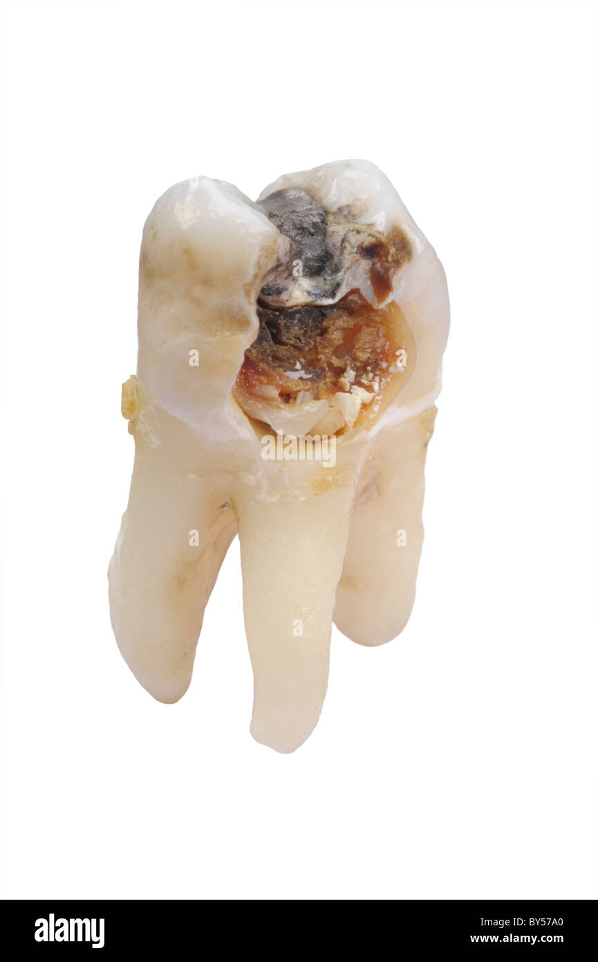 extracted tooth with dental caries isolated on white background - Stock Image