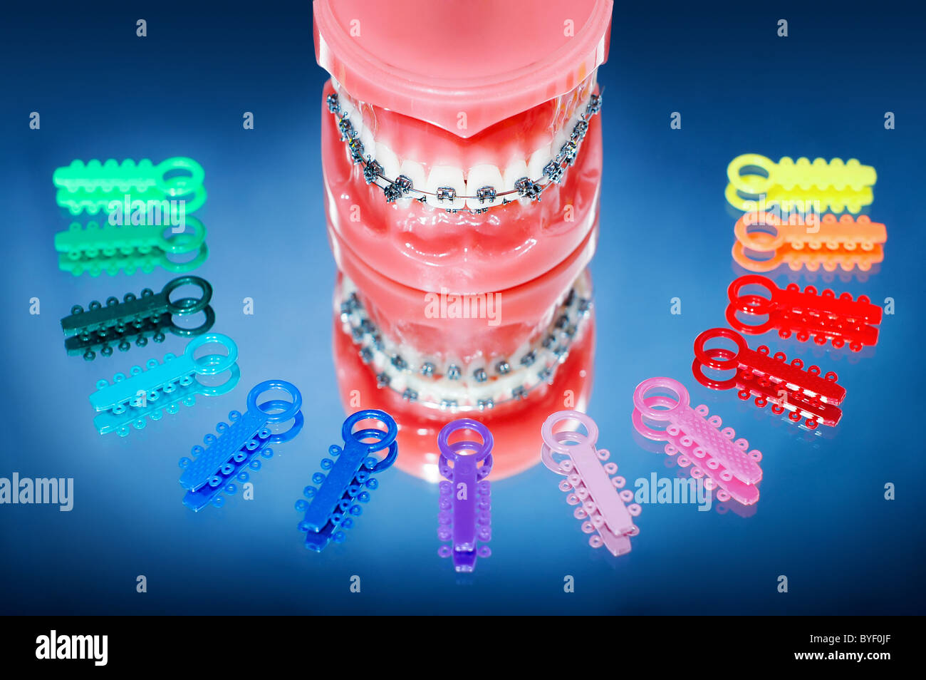 Dentures with braces surrounded by multicolored ligature ties Stock ...