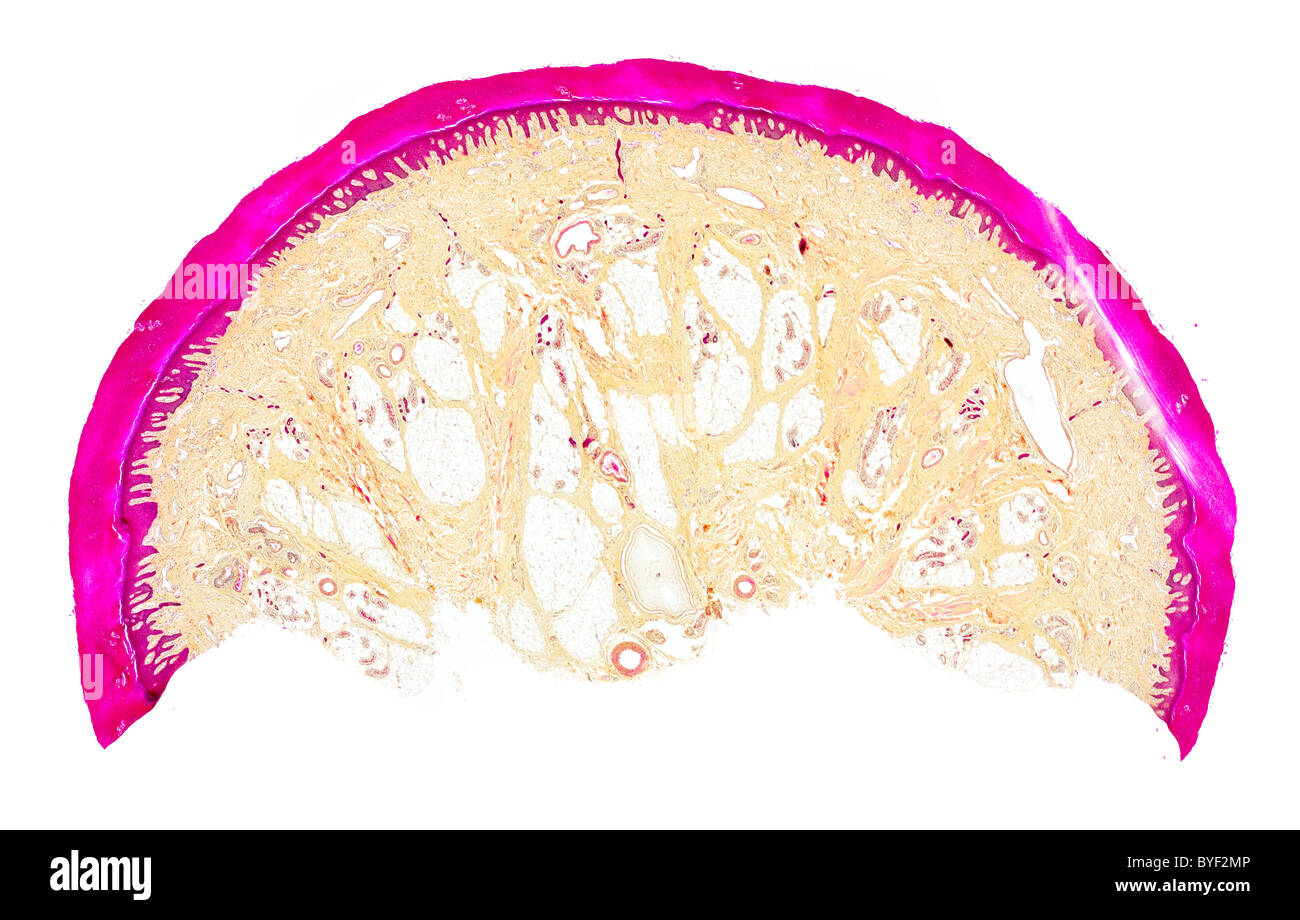 Brightfield photomicrograph, human skin section, finger tip shwing layered structure Stock Photo