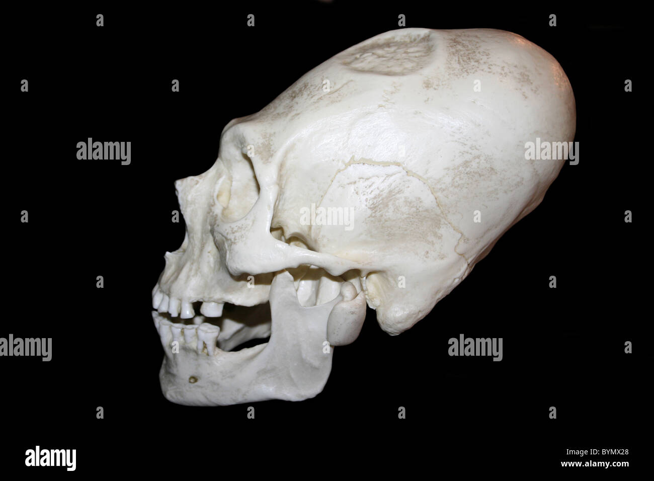 Elongated And Trephinated Male Skull, Peru - Stock Image