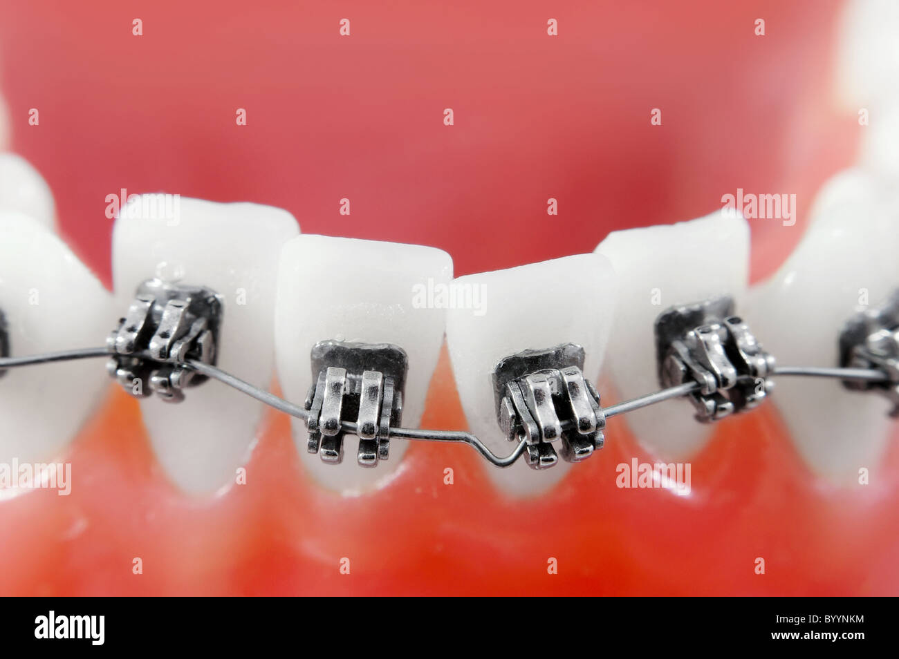 Dental braces super macro ,  crooked teeth , shallow depth of field - Stock Image