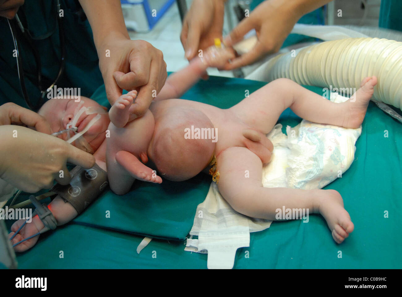 Babys born with both sex organs
