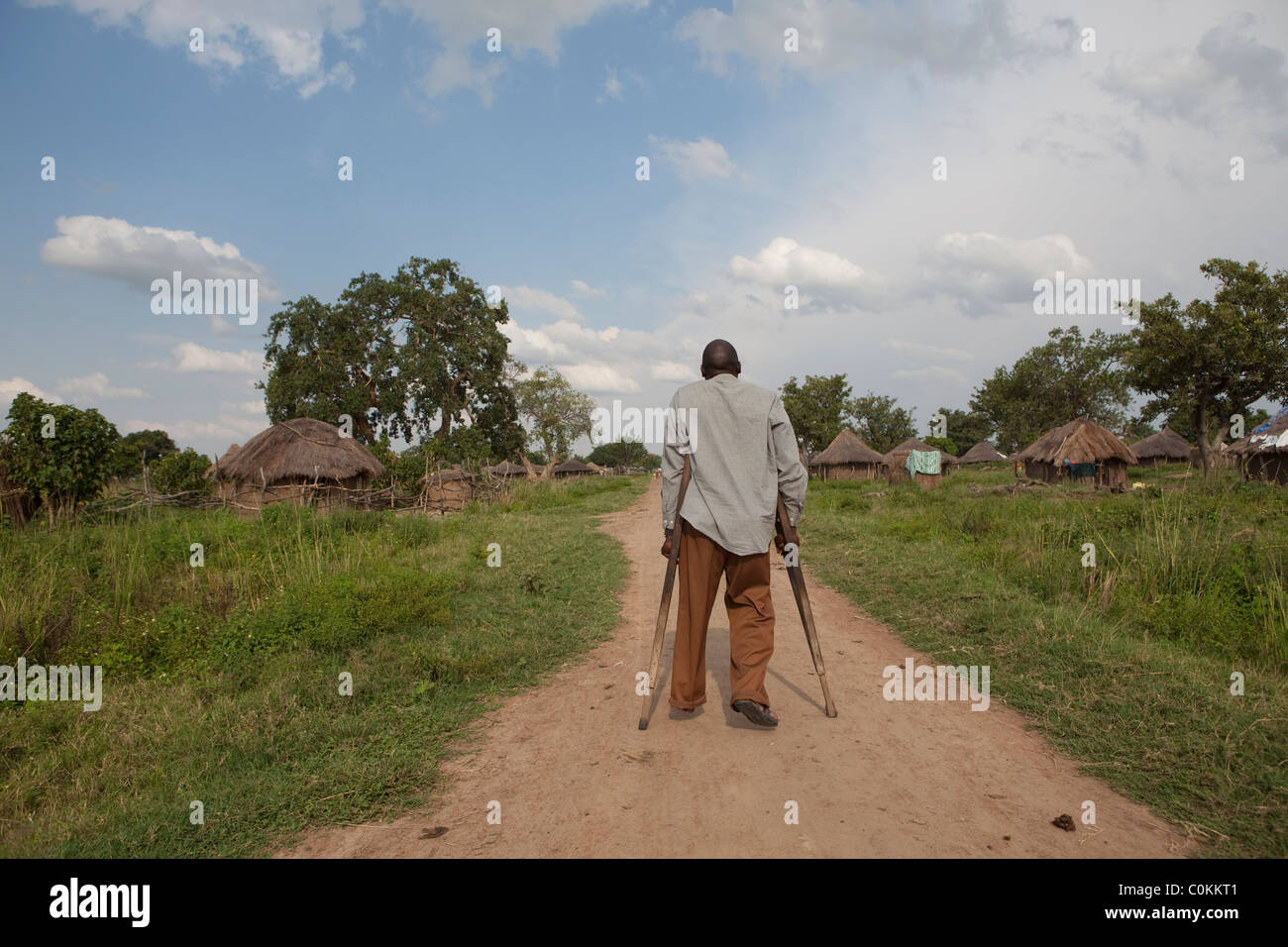 A disabled man walks through a village in Amuria, Uganda, East Africa. - Stock Image