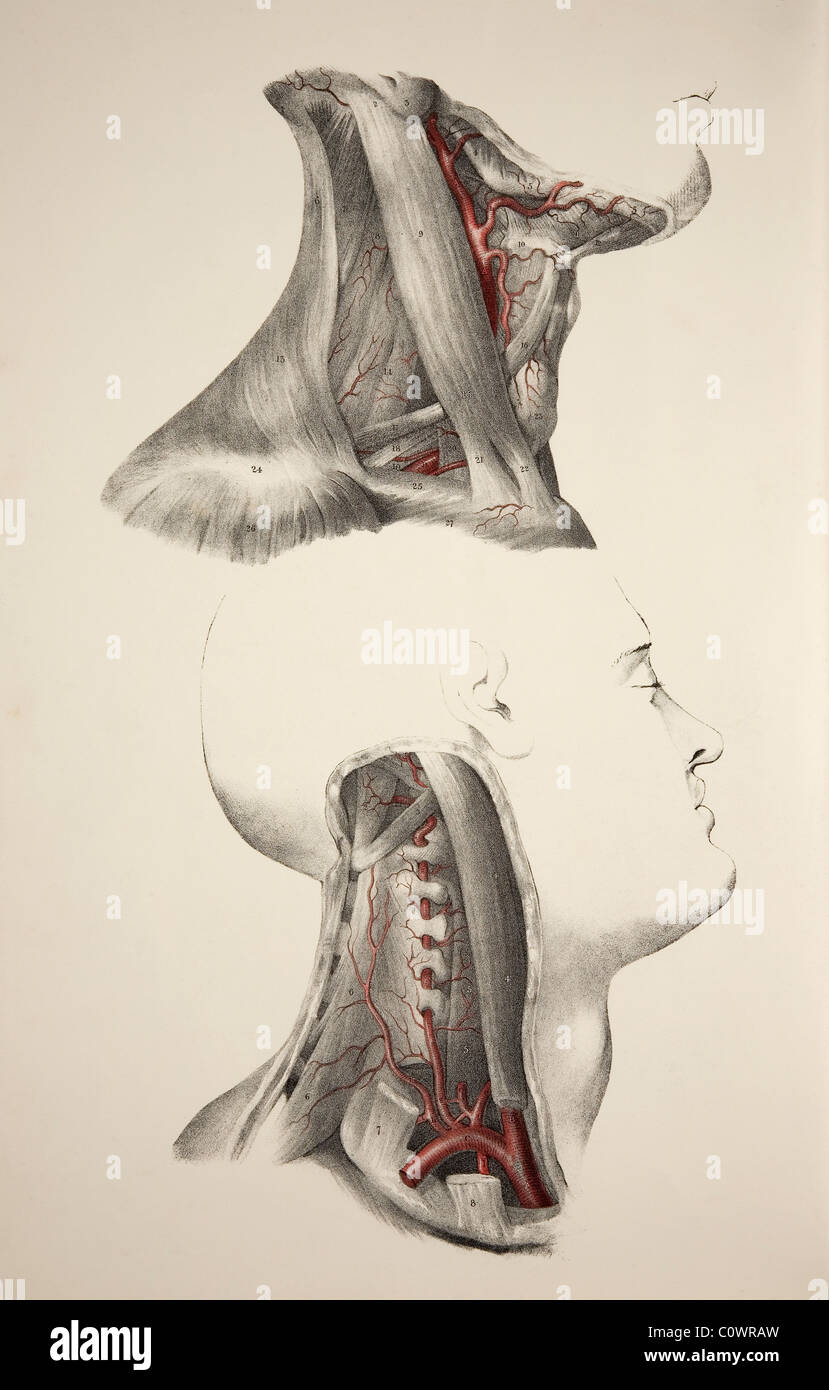 Neck arteries. Historical illustration showing two images of the ...