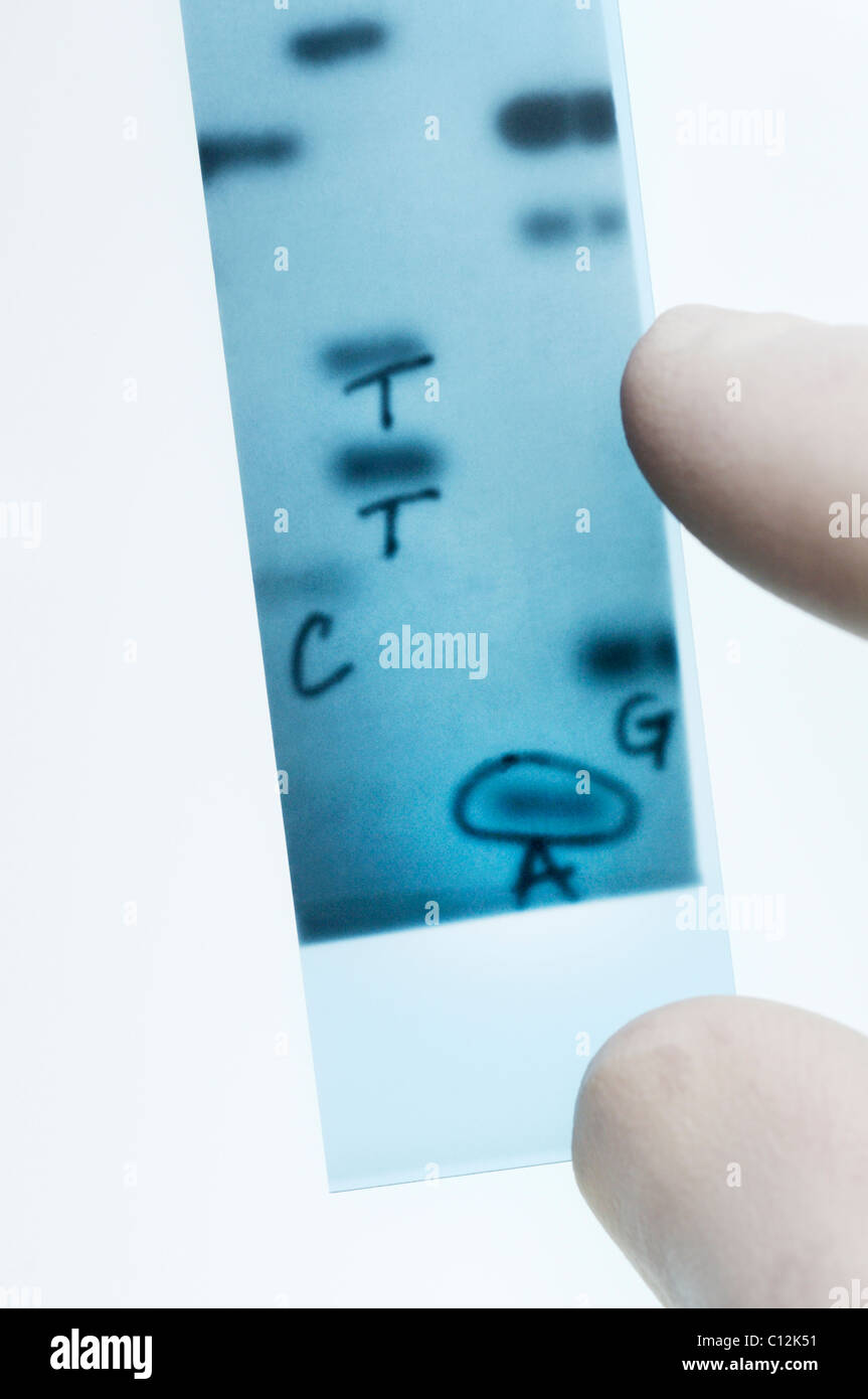DNA sequencing. Scientist points to bands representing nucleotide bases (A,C,T,G) in an x-ray image of a gel.  Sanger - Stock Image