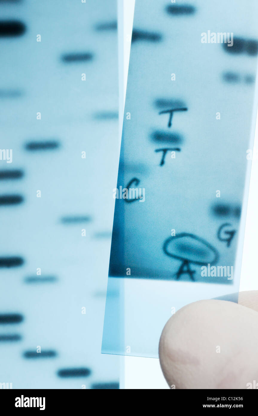 DNA sequencing. Scientist holding an X-ray image of a gel with DNA nucleotide bases (A,C,T,G) sequenced.  Sanger - Stock Image