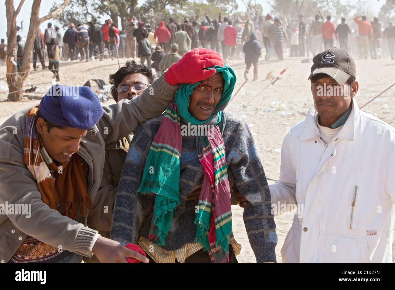 An injured Bangladeshi in the Shousha refugee camp, Ben Gardane, Tunisia - Stock Image
